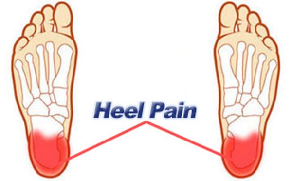 Remedy heel pain
